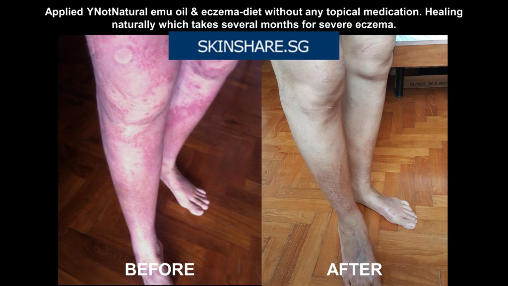 Emu oil review legs