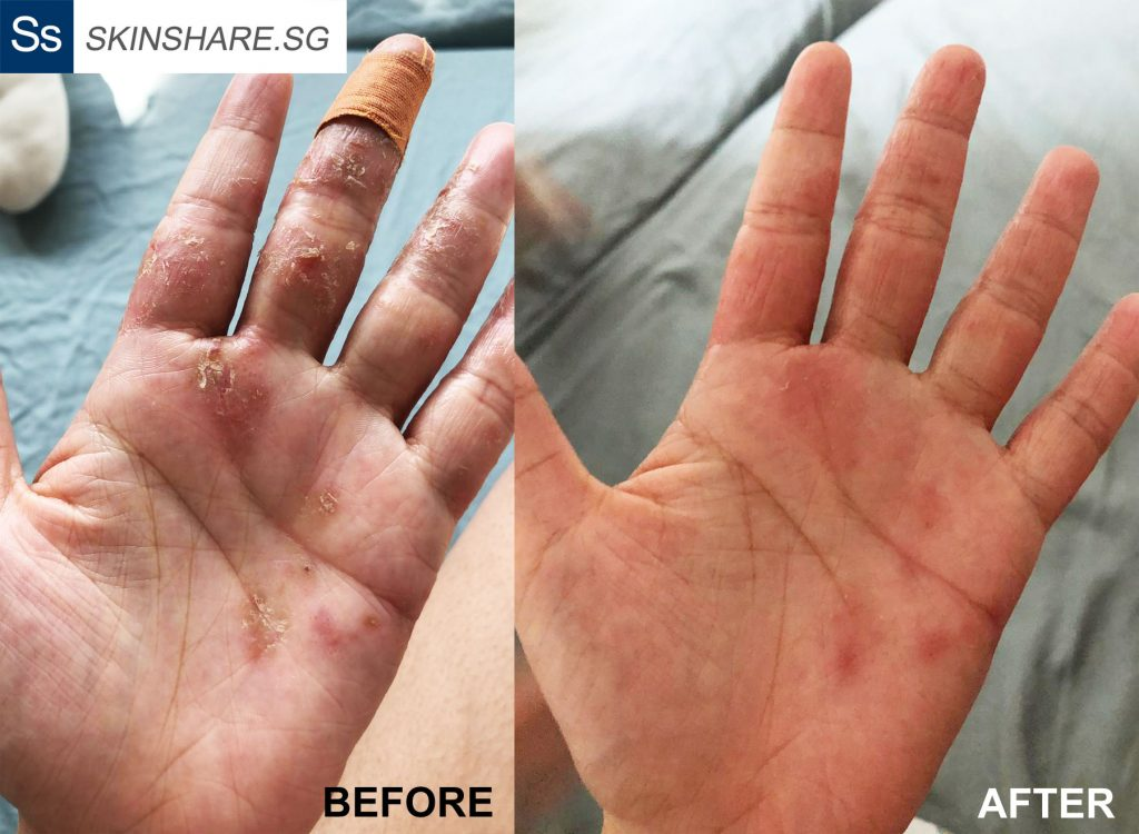Hand eczema before and after using Argasol, emu oil and Gloves in a Bottle