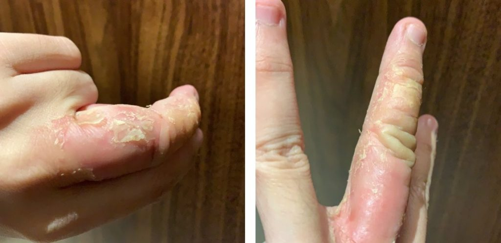 Eczema causing inflamed, peeling, cracking and itchy fingers