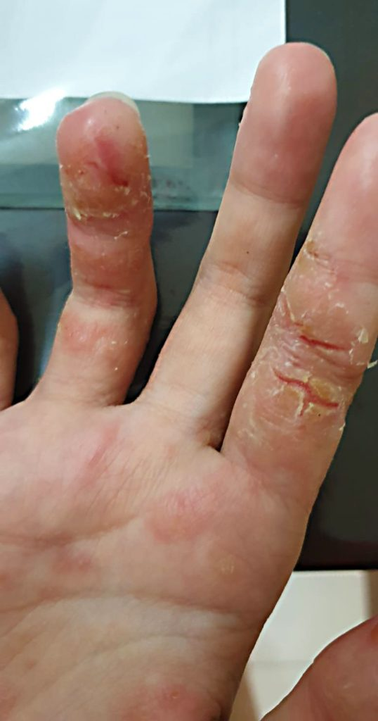 hand eczema showing cracked skin on index finger ring finger