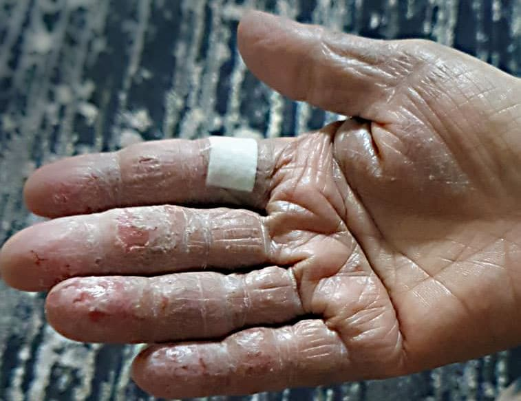 Above: Hand eczema in senior citizens is common due to changes in the skin due to aging.