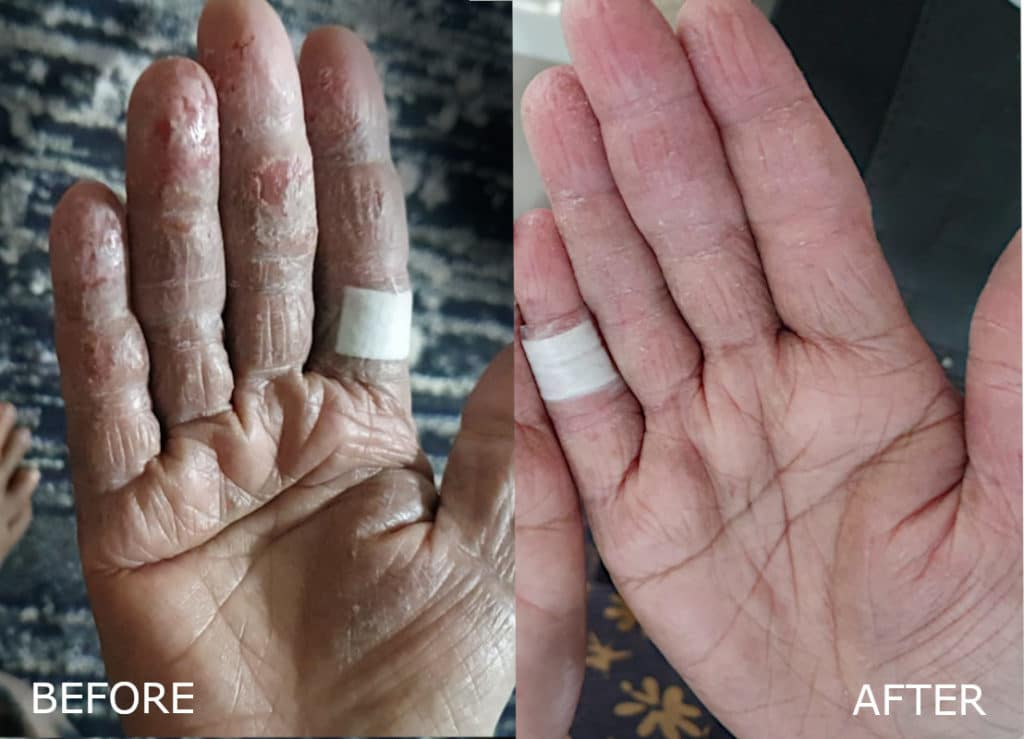 Hand eczema in elderly. LEFT: Before, cracking skin on elderly patient's fingers. RIGHT: After two weeks: Less dry, wounds closed, less tight