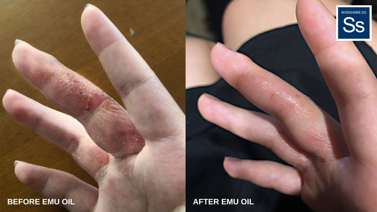 BEFORE: Dry and peeling hand eczema. AFTER: One day after applying YNot-Natural Pure Emu Oil and wearing bamboo gloves overnight. The dry and peeling skin is noticeably reduced