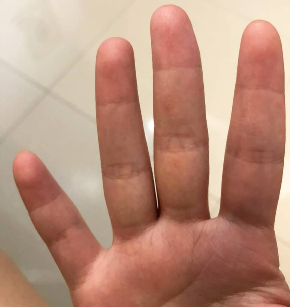 Several weeks after using emu oil and wearing bamboo gloves regularly. The skin on her hands have healed up, and she no longer needs to use steroid creams to control her flare-ups