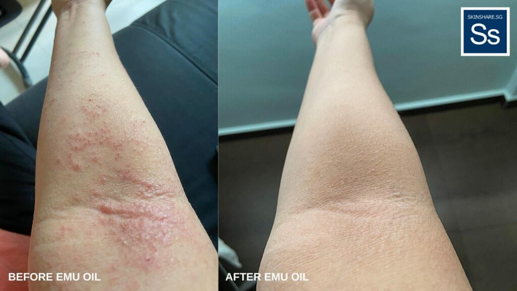 Eczema before and after on Janice's right arm. The redness is gone, and the itchiness has calmed down.