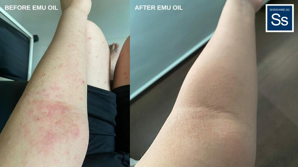 Above: Before and after eczema on Janice's left arm.